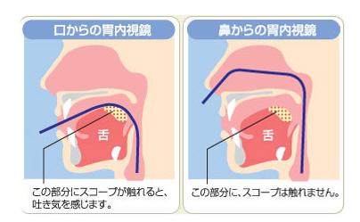 胃 カメラ 喉 の 痛み